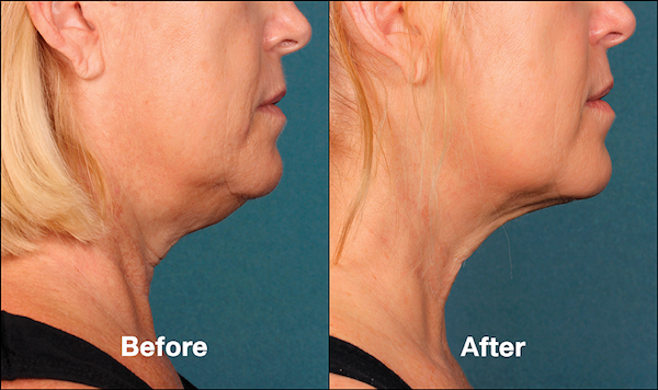 Before and After KYBELLA For Females