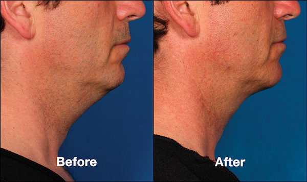 Before and After KYBELLA For Males