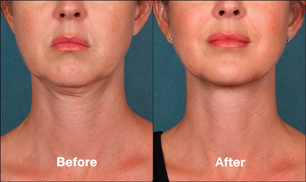 Female Before and After KYBELLA
