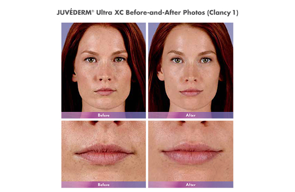 JUVÉDERM® Ultra XC Female Before and After