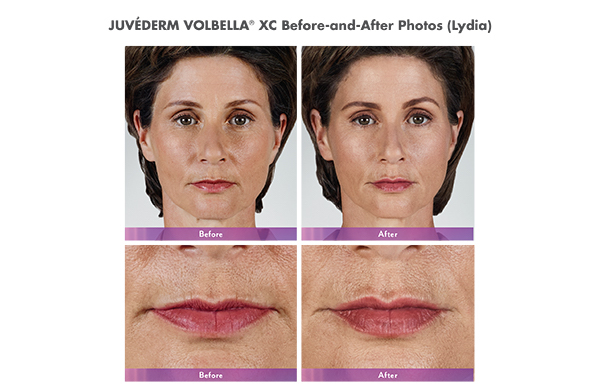 JUVÉDERM® Volbella XC Before and After
