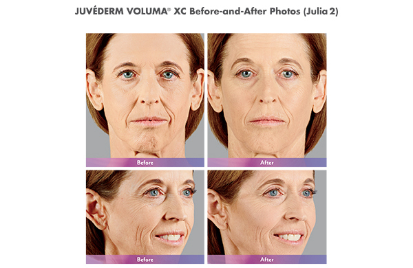 JUVÉDERM VOLUMA® XC Before and After