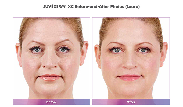 JUVÉDERM XC Before and After Female