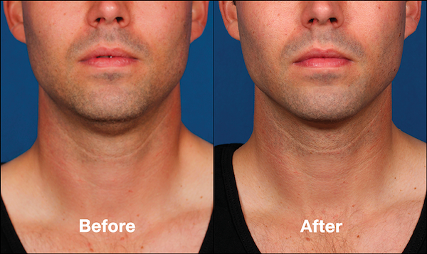 Male Before and After KYBELLA