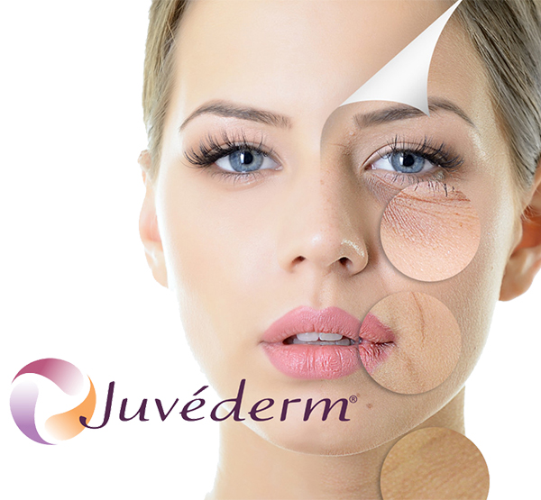 Juvederm Specials